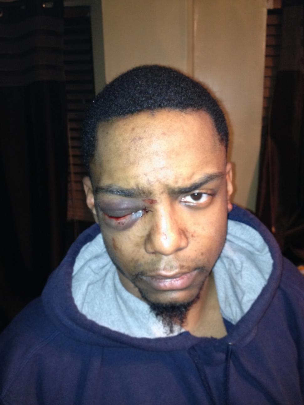Beaten up sum gay watch